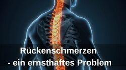 Rückenschmerzen – ein ernsthaftes Problem